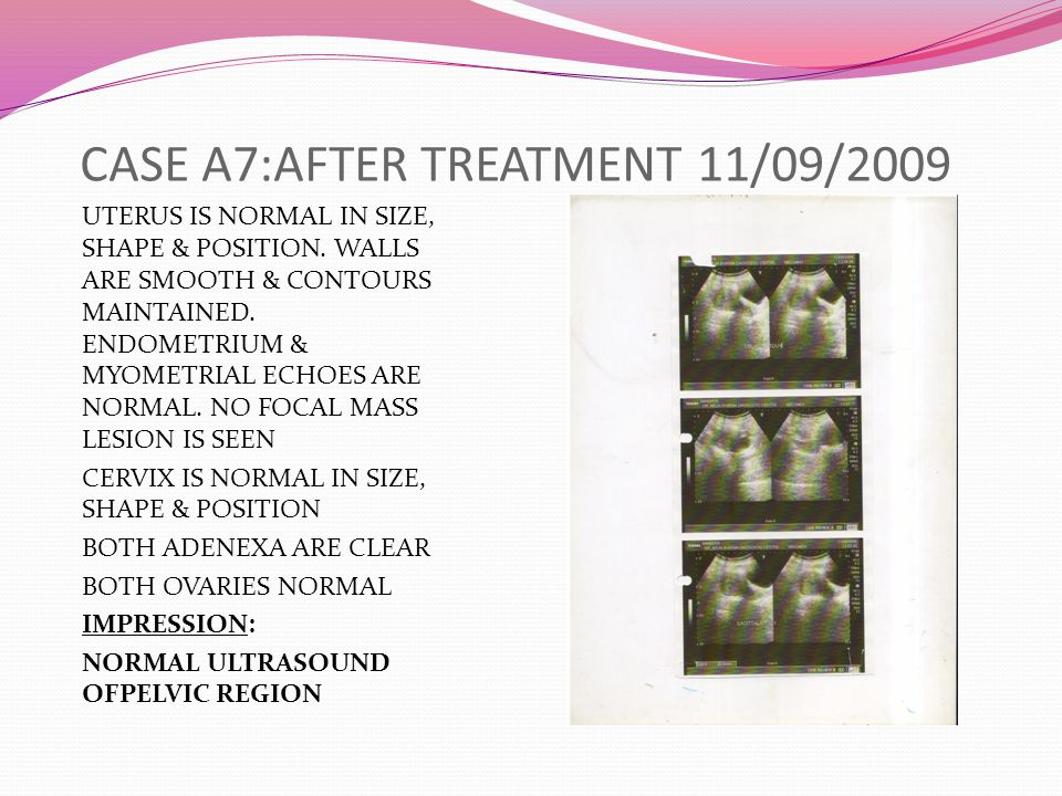 CASE A7:AFTER TREATMENT 11/09/2009 UTERUS IS NORMAL IN SIZE, SHAPE & POSITION.
