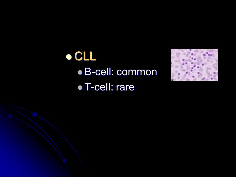 CLL CLL B-cell: common B-cell: common T-cell: rare T-cell: rare