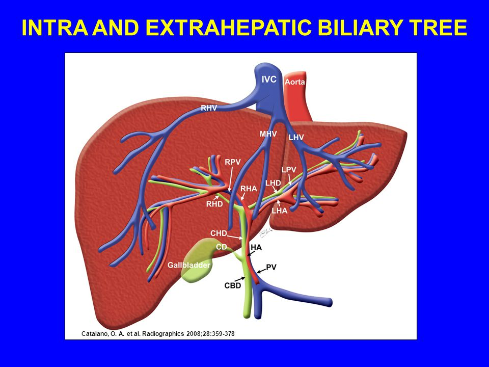 Catalano, O. A. et al. Radiographics 2008;28:359-378 INTRA AND EXTRAHEPATIC BILIARY TREE