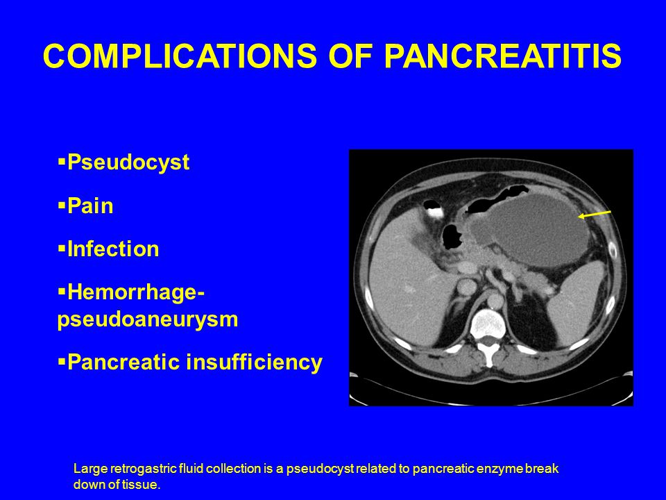  Pseudocyst  Pain  Infection  Hemorrhage- pseudoaneurysm  Pancreatic insufficiency COMPLICATIONS OF PANCREATITIS Large retrogastric fluid collection is a pseudocyst related to pancreatic enzyme break down of tissue.