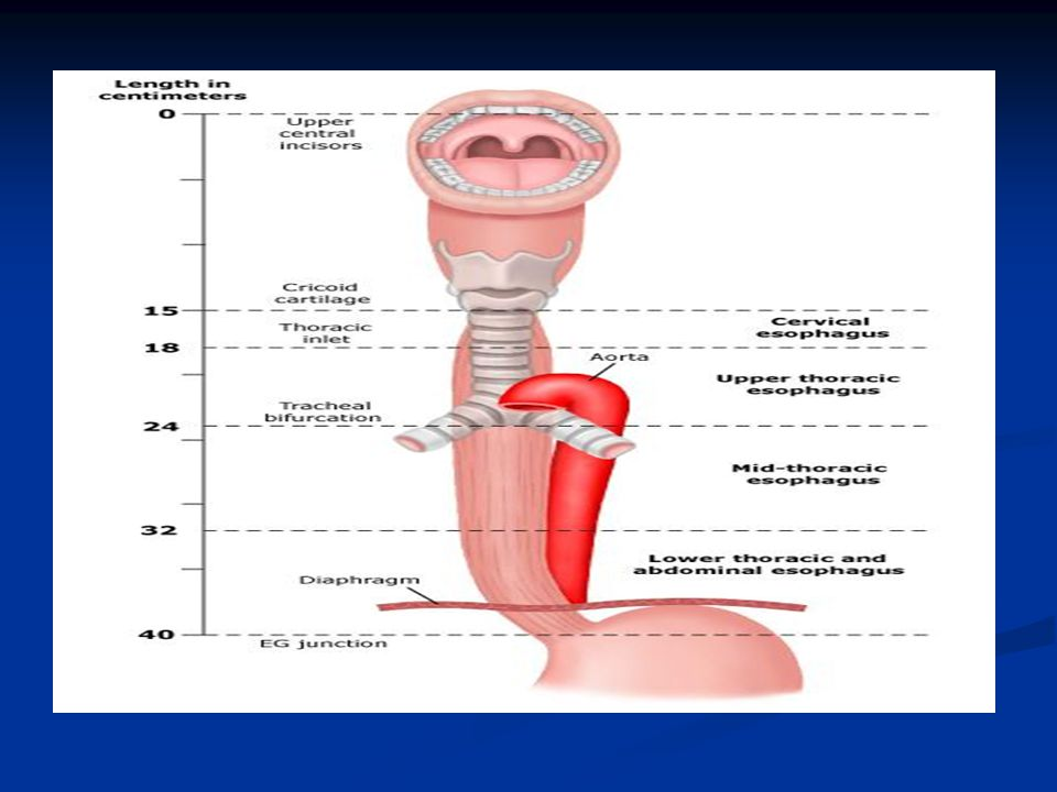 NEOADJUVANT CHEMOTHERAPY NEOADJUVANT CHEMOTHERAPY United Kingdom MAGIC trial — study of preoperative chemotherapy, included patients with resectable gastric (74 percent), GEJ (15 percent), or distal esophageal (11 percent) adenocarcinomas.