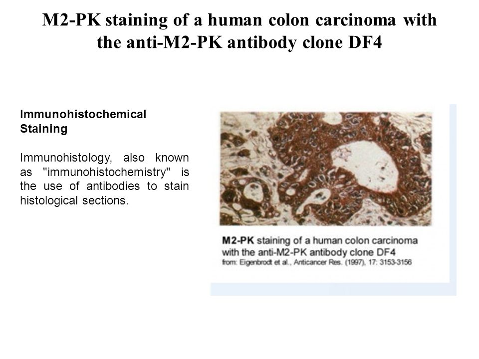M2-PK staining of a human colon carcinoma with the anti-M2-PK antibody clone DF4 Immunohistochemical Staining Immunohistology, also known as