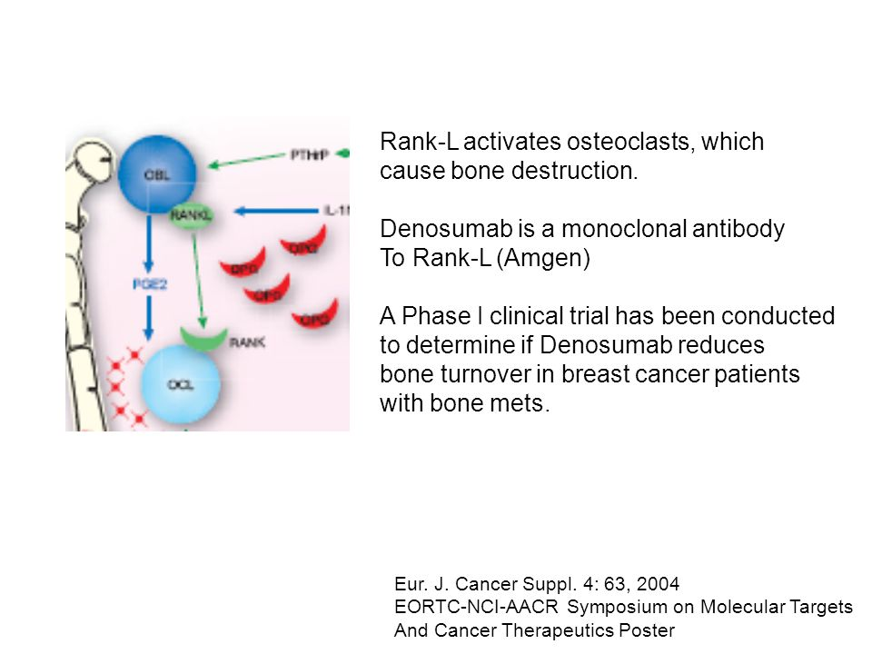 Rank-L activates osteoclasts, which cause bone destruction. Denosumab is a monoclonal antibody To Rank-L (Amgen) A Phase I clinical trial has been con