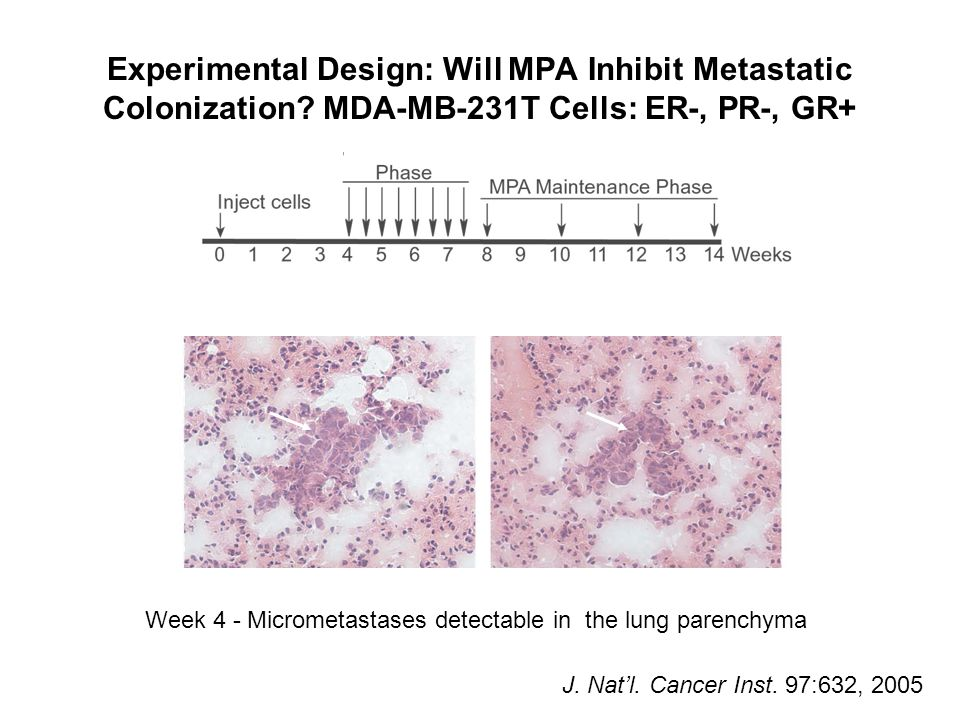 Week 4 - Micrometastases detectable in the lung parenchyma Experimental Design: Will MPA Inhibit Metastatic Colonization? MDA-MB-231T Cells: ER-, PR-,
