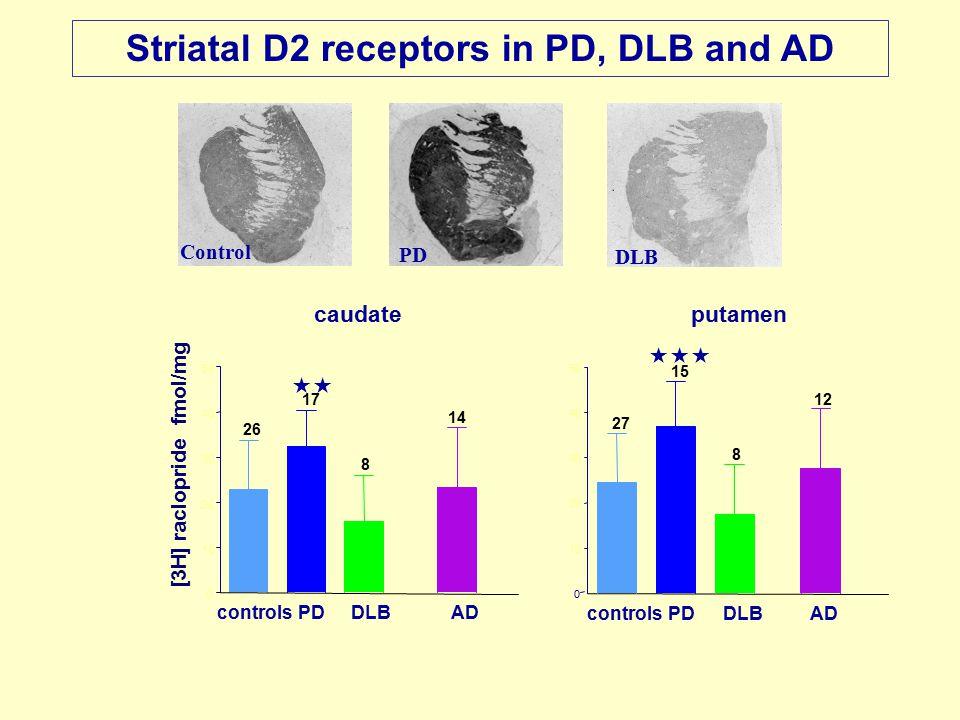 Striatal D2 receptors in PD, DLB and AD Control PD DLB  controlsPDDLBAD  controlsPDDLBAD 0 10 20 30 40 50 14 8 17 26 [3H] raclopride fmol/mg 0 10 20 30 40 50 12 8 15 27 caudateputamen