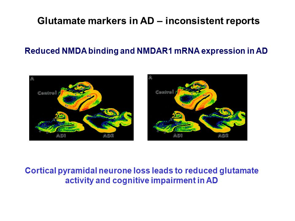 Cortical pyramidal neurone loss leads to reduced glutamate activity and cognitive impairment in AD Glutamate markers in AD – inconsistent reports Reduced NMDA binding and NMDAR1 mRNA expression in AD