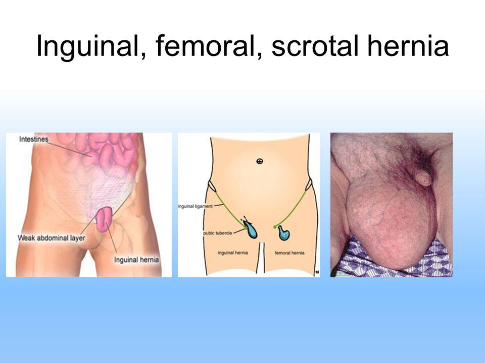 Inguinal, femoral, scrotal hernia