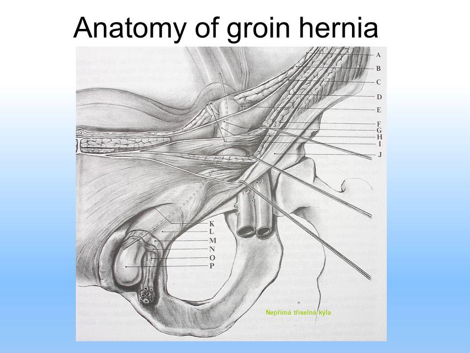 Anatomy of groin hernia Nepřímá tříselná kýla