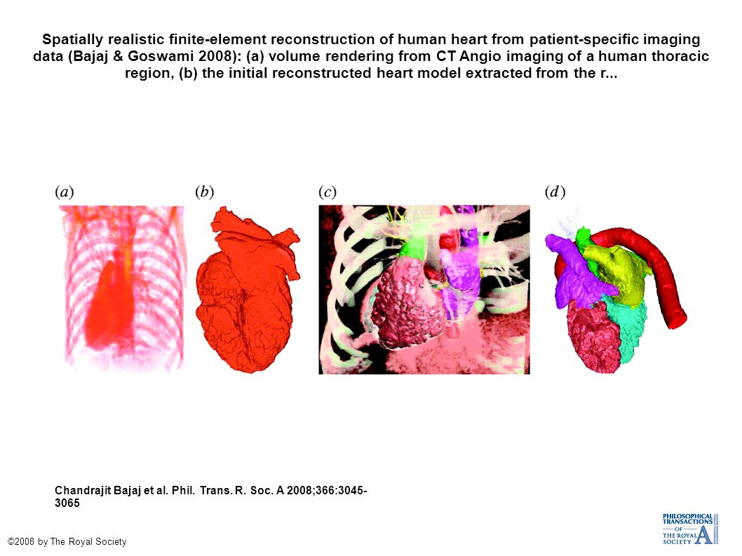 Spatially realistic finite-element reconstruction of human heart from patient-specific imaging data (Bajaj & Goswami 2008): (a) volume rendering from