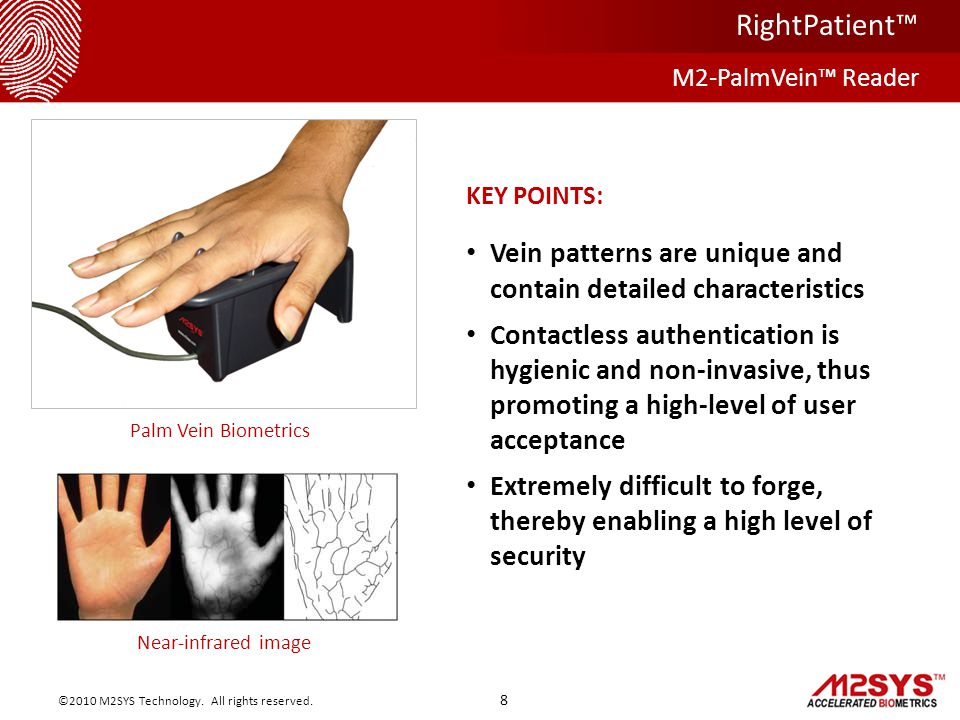 M2-PalmVein™ Reader RightPatient™ 8 ©2010 M2SYS Technology.