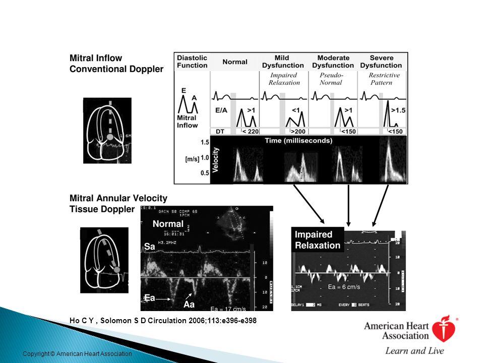 Ho C Y, Solomon S D Circulation 2006;113:e396-e398 Copyright © American Heart Association