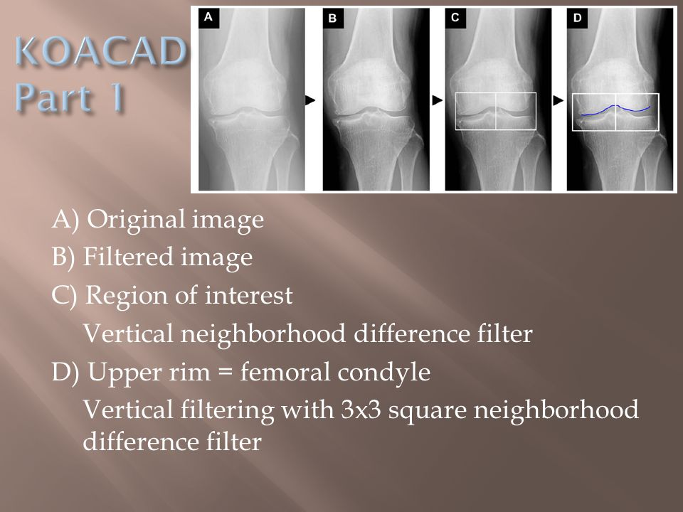A) Original image B) Filtered image C) Region of interest Vertical neighborhood difference filter D) Upper rim = femoral condyle Vertical filtering with 3x3 square neighborhood difference filter