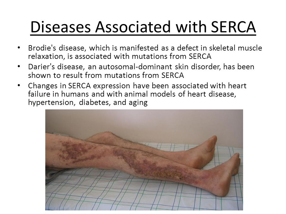 Diseases Associated with SERCA Brodie s disease, which is manifested as a defect in skeletal muscle relaxation, is associated with mutations from SERCA Darier s disease, an autosomal-dominant skin disorder, has been shown to result from mutations from SERCA Changes in SERCA expression have been associated with heart failure in humans and with animal models of heart disease, hypertension, diabetes, and aging