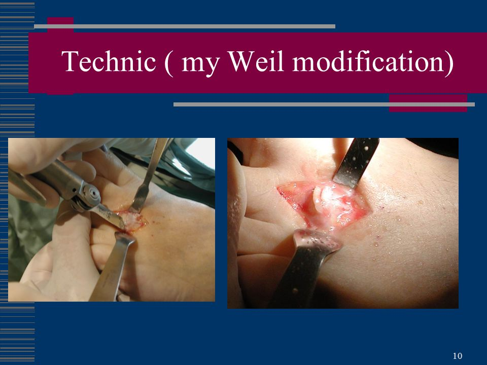 10 Technic ( my Weil modification)