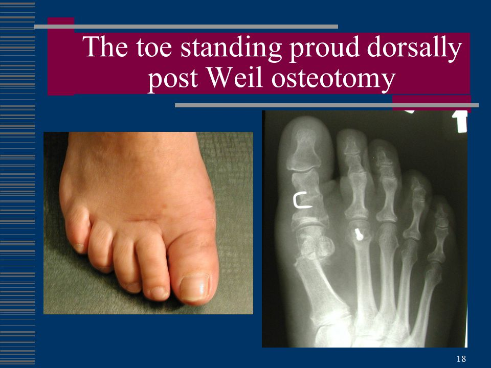 18 The toe standing proud dorsally post Weil osteotomy