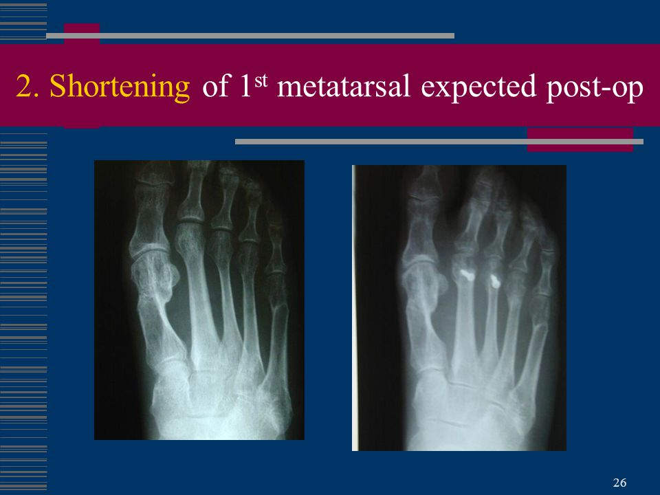26 2. Shortening of 1 st metatarsal expected post-op