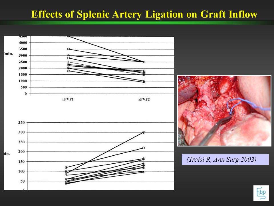 Effects of Splenic Artery Ligation on Graft Inflow (Troisi R, Ann Surg 2003)