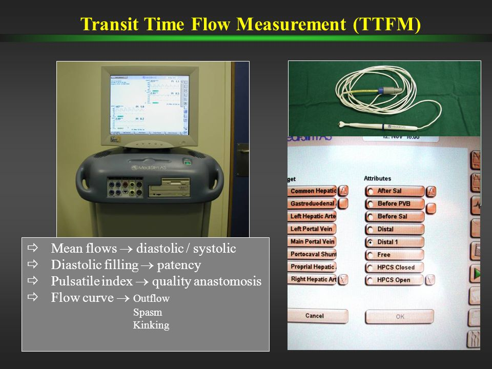  Mean flows  diastolic / systolic  Diastolic filling  patency  Pulsatile index  quality anastomosis  Flow curve  Outflow Spasm Kinking Transit Time Flow Measurement (TTFM)
