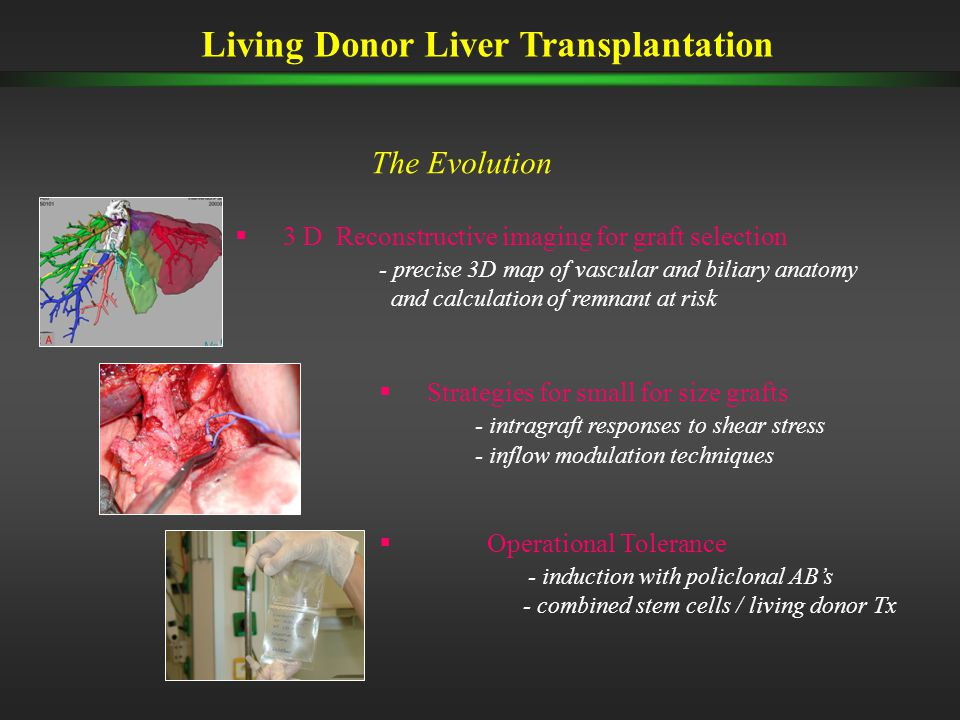 Living Donor Liver Transplantation The Evolution  3 D Reconstructive imaging for graft selection - precise 3D map of vascular and biliary anatomy and