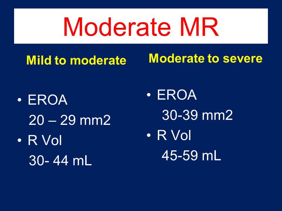 Moderate MR Mild to moderate EROA 20 – 29 mm2 R Vol 30- 44 mL Moderate to severe EROA 30-39 mm2 R Vol 45-59 mL