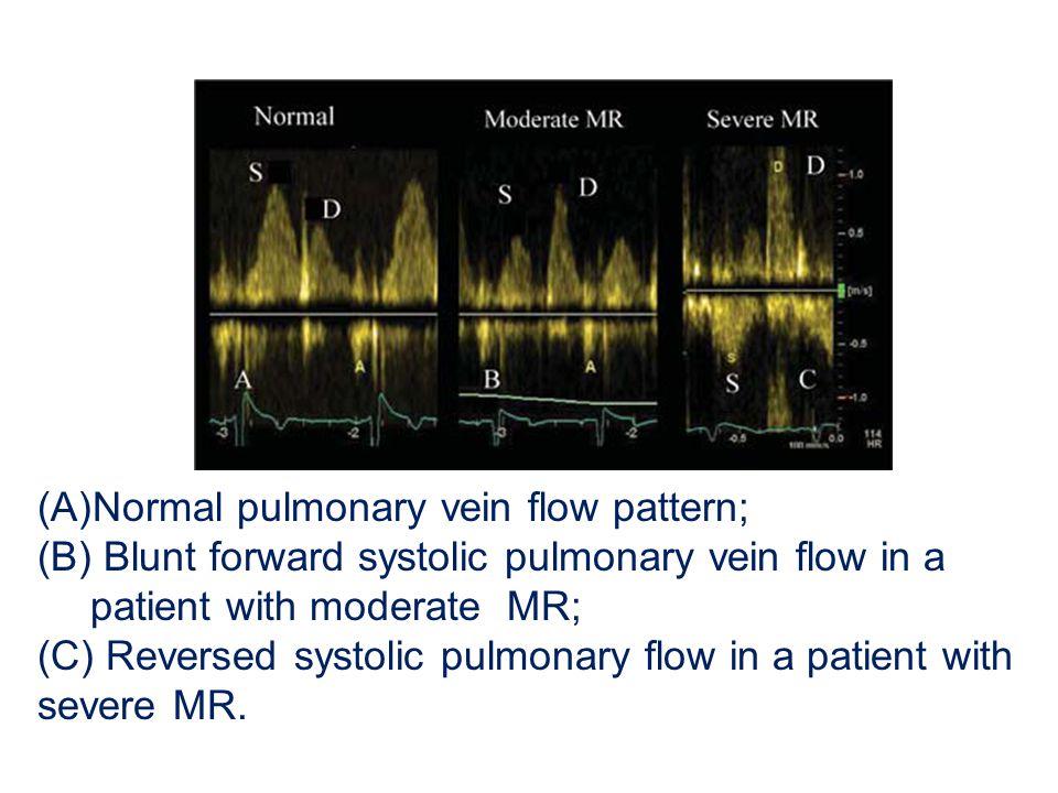 (A)Normal pulmonary vein flow pattern; (B) Blunt forward systolic pulmonary vein flow in a patient with moderate MR; (C) Reversed systolic pulmonary f