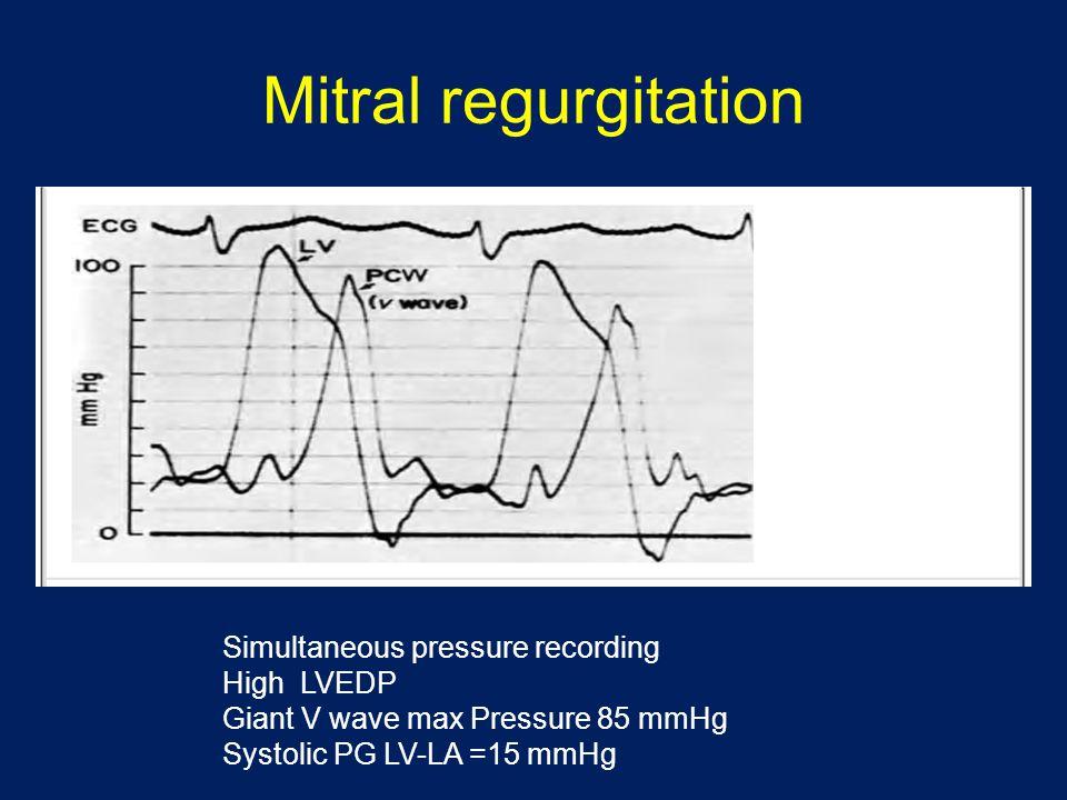 Mitral regurgitation Simultaneous pressure recording High LVEDP Giant V wave max Pressure 85 mmHg Systolic PG LV-LA =15 mmHg