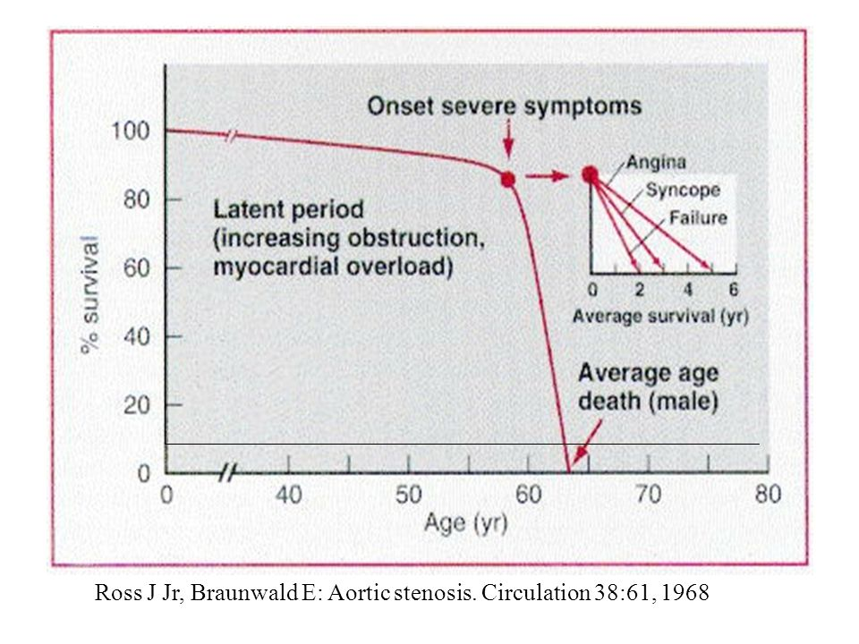 Ross J Jr, Braunwald E: Aortic stenosis. Circulation 38:61, 1968