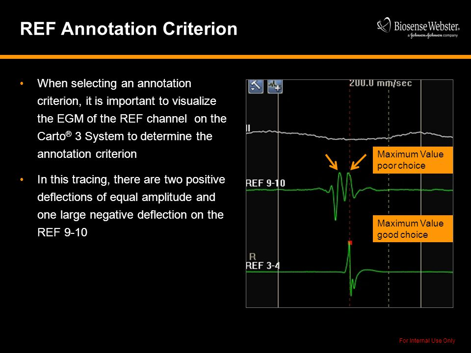 For Internal Use Only REF Annotation Criterion When selecting an annotation criterion, it is important to visualize the EGM of the REF channel on the