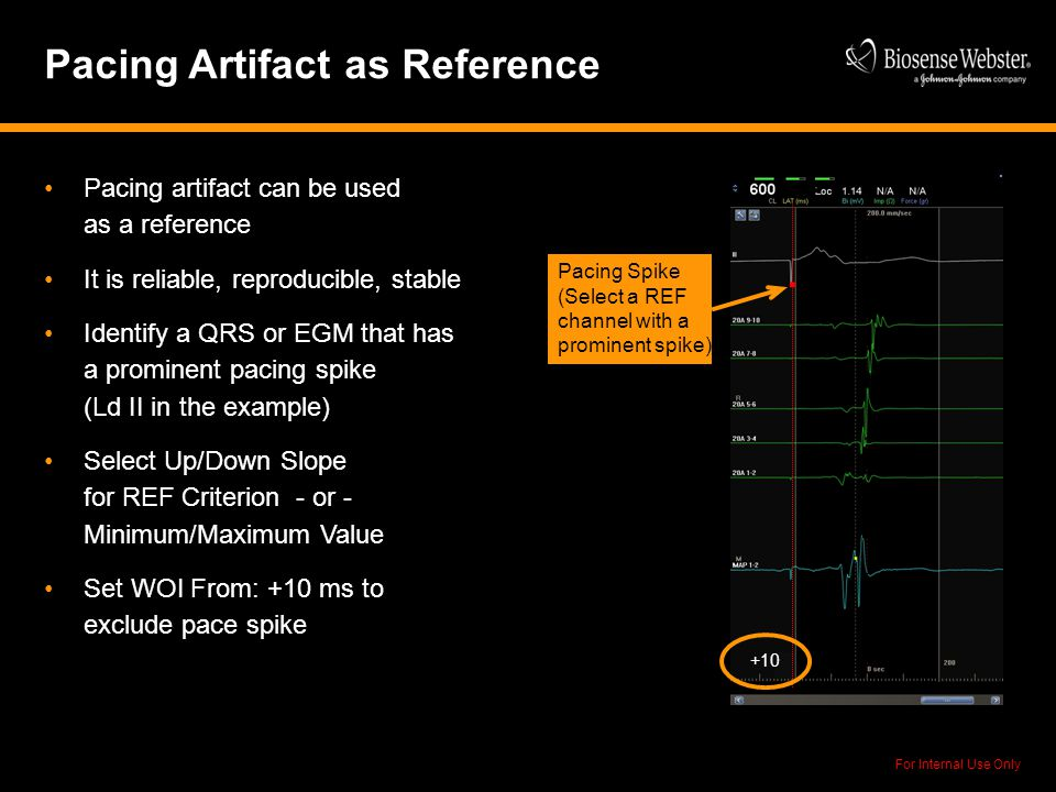 For Internal Use Only Pacing Artifact as Reference Pacing artifact can be used as a reference It is reliable, reproducible, stable Identify a QRS or E