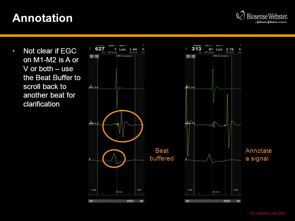 For Internal Use Only Annotation Not clear if EGC on M1-M2 is A or V or both – use the Beat Buffer to scroll back to another beat for clarification An