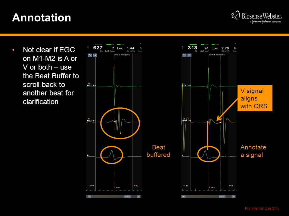 For Internal Use Only Annotation Not clear if EGC on M1-M2 is A or V or both – use the Beat Buffer to scroll back to another beat for clarification V