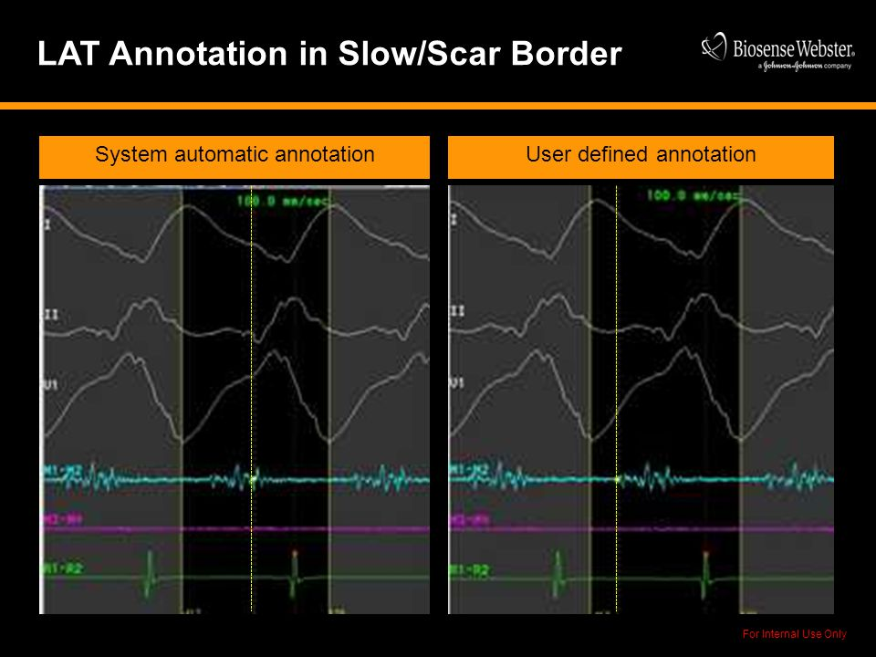 For Internal Use Only LAT Annotation in Slow/Scar Border System automatic annotationUser defined annotation