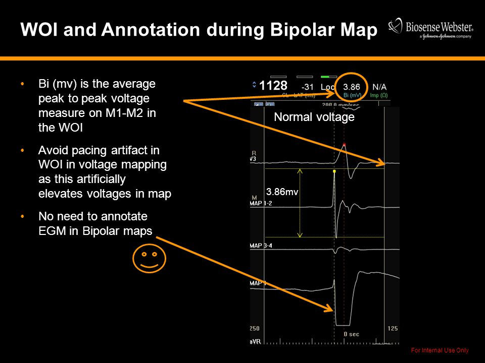 For Internal Use Only WOI and Annotation during Bipolar Map Bi (mv) is the average peak to peak voltage measure on M1-M2 in the WOI Avoid pacing artif