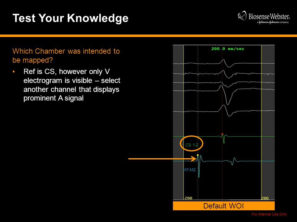 For Internal Use Only Test Your Knowledge Default WOI CS 1-2 M1-M2 Which Chamber was intended to be mapped? Ref is CS, however only V electrogram is v