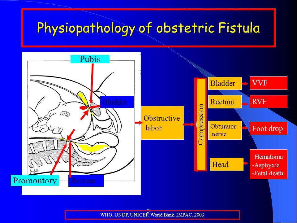 3 Physiopathology of obstetric Fistula Promontory Pubis Bladder Rectum Vagina WHO, UNDP, UNICEF, World Bank.