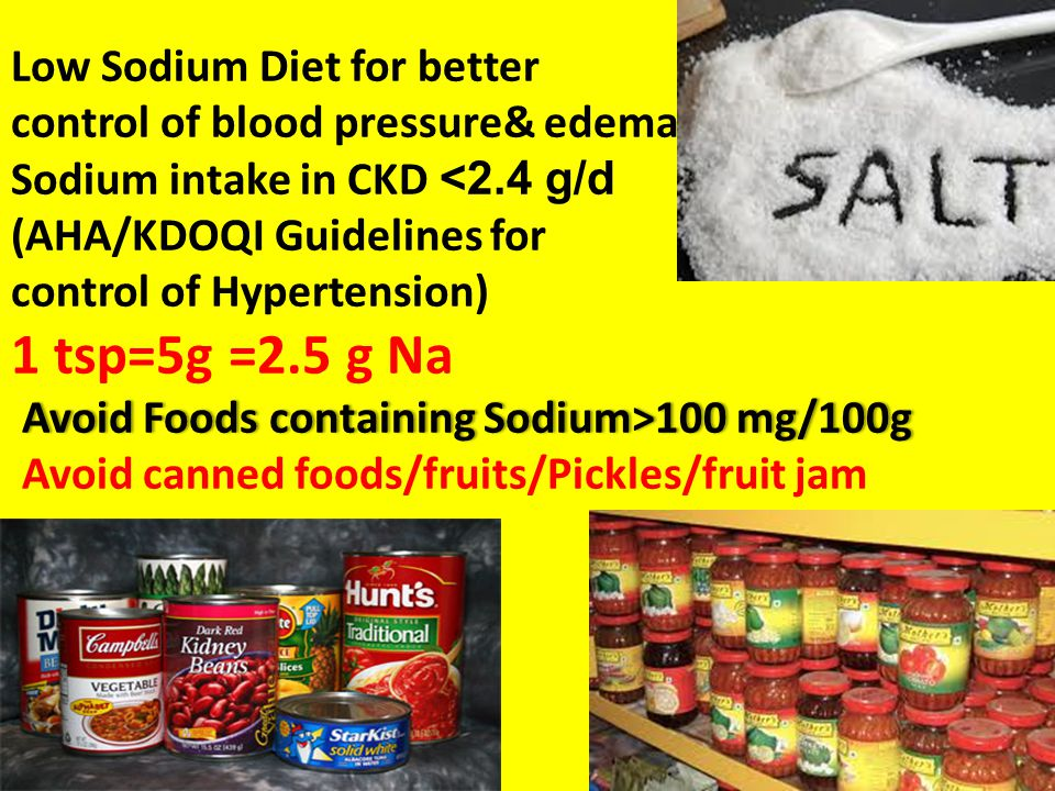 Avoid Foods containing Sodium>100 mg/100g Low Sodium Diet for better control of blood pressure& edema Sodium intake in CKD 100 mg/100g Avoid canned fo