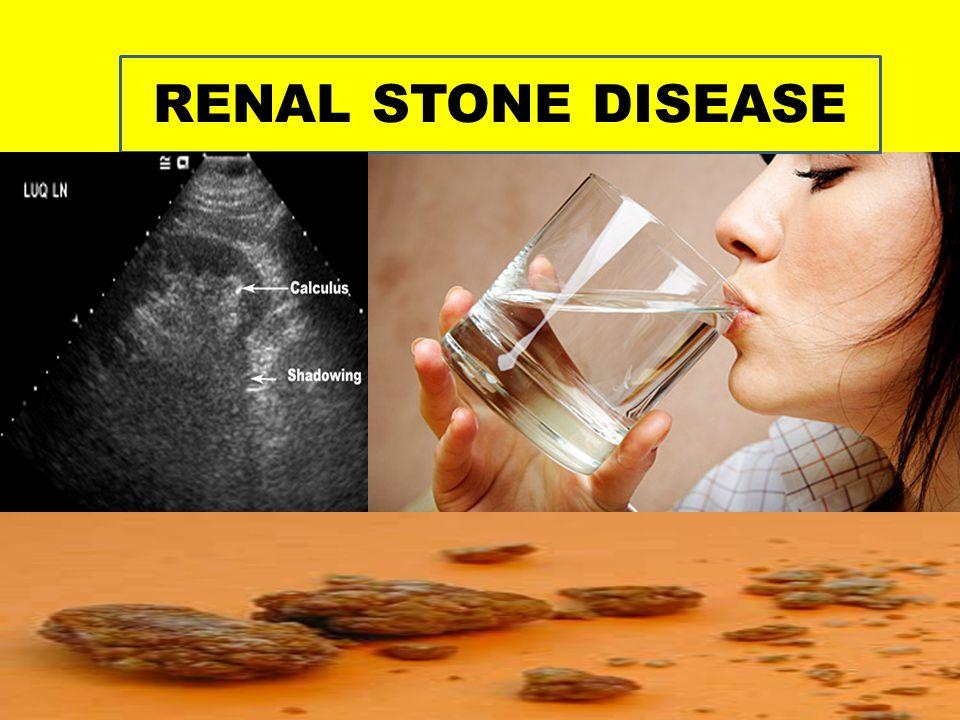RENAL STONE DISEASE