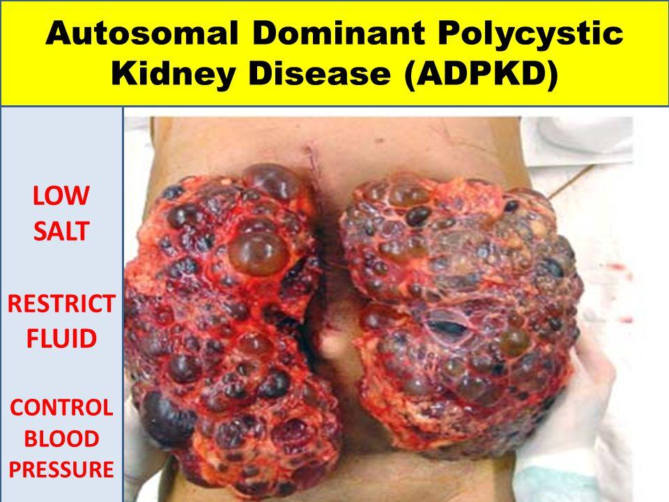 Autosomal Dominant Polycystic Kidney Disease (ADPKD) LOW SALT RESTRICT FLUID CONTROL BLOOD PRESSURE