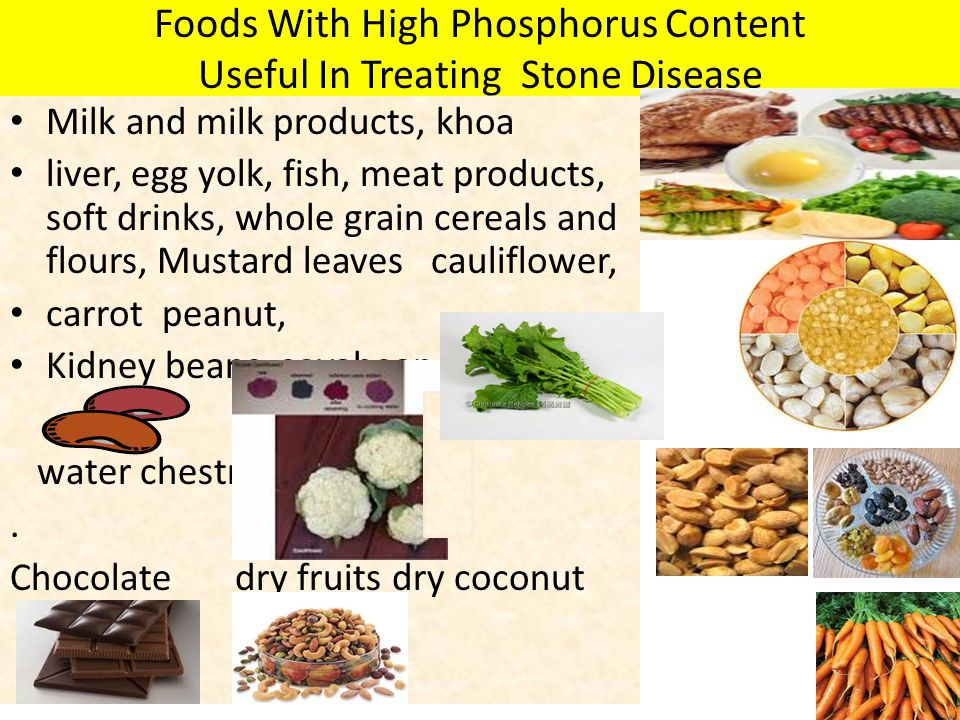 Foods With High Phosphorus Content Useful In Treating Stone Disease Milk and milk products, khoa liver, egg yolk, fish, meat products, soft drinks, wh