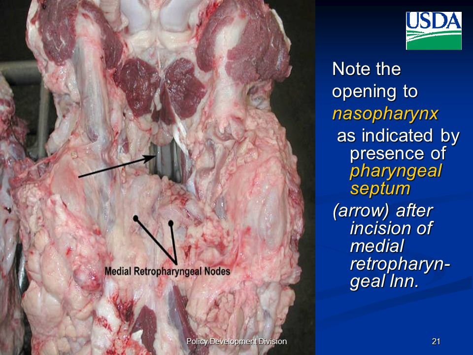 UNITED STATES DEPARTMENT OF AGRICULTURE FOOD SAFETY AND INSPECTION SERVICE October 10, 2008 (v2)21 Note the opening to nasopharynx as indicated by presence of pharyngeal septum as indicated by presence of pharyngeal septum (arrow) after incision of medial retropharyn- geal lnn.