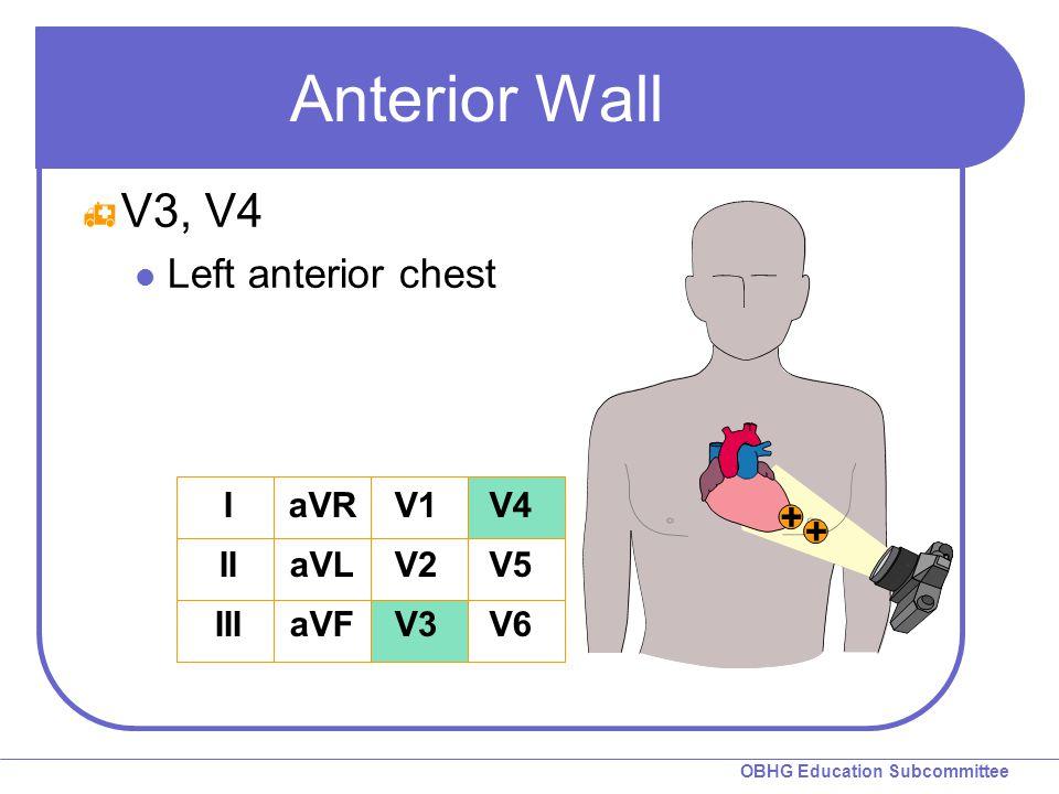 OBHG Education Subcommittee Anterior Wall  V3, V4 Left anterior chest I II III aVR aVL aVF V1 V2 V3 V4 V5 V6