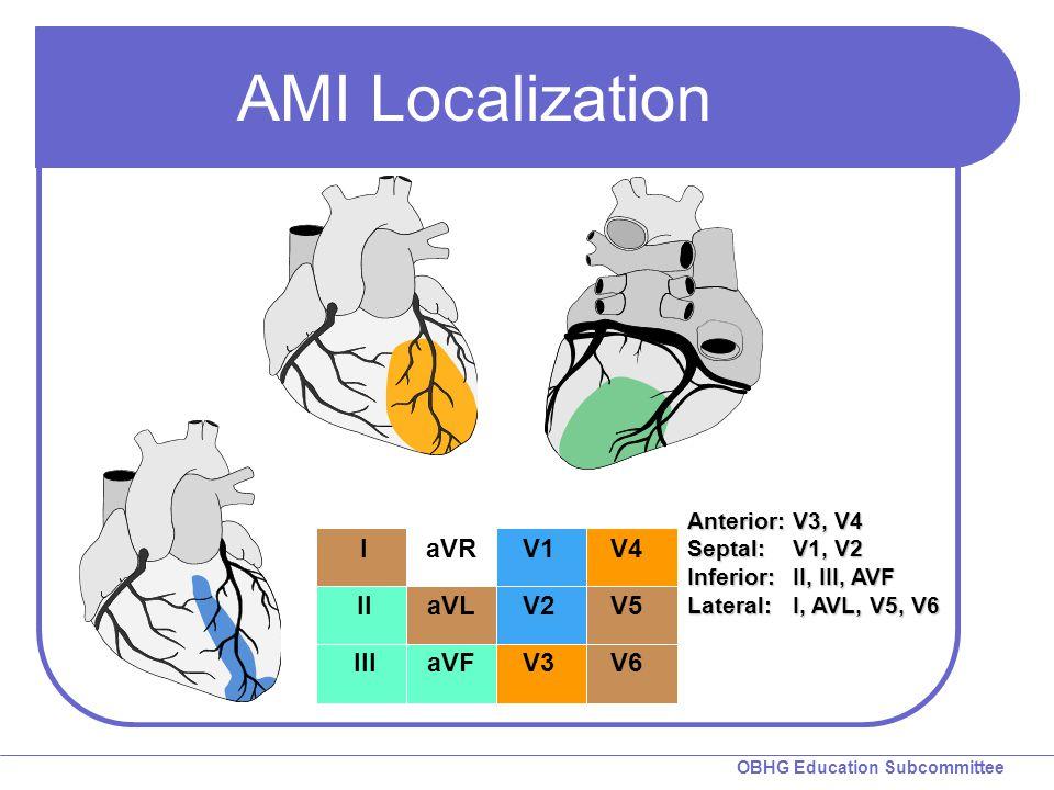 OBHG Education Subcommittee AMI Localization Anterior: V3, V4 Septal: V1, V2 Inferior: II, III, AVF Lateral:I, AVL, V5, V6 I II III aVR aVL aVF V1 V2