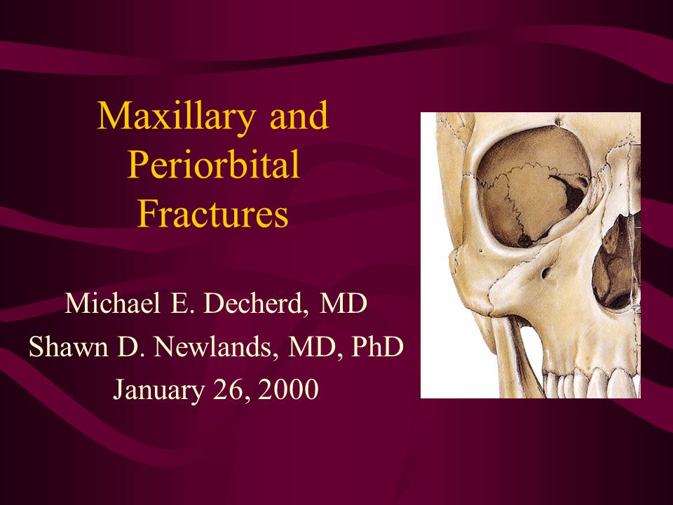 Maxillary and Periorbital Fractures Michael E. Decherd, MD Shawn D. Newlands, MD, PhD January 26, 2000