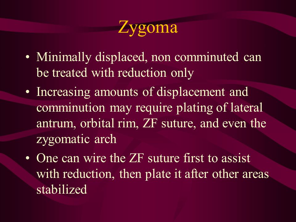 Zygoma Minimally displaced, non comminuted can be treated with reduction only Increasing amounts of displacement and comminution may require plating o