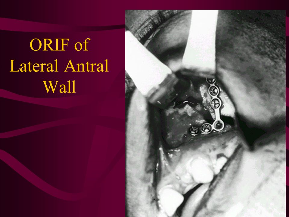 ORIF of Lateral Antral Wall
