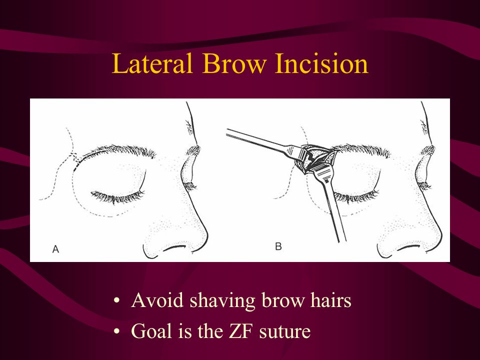Lateral Brow Incision Avoid shaving brow hairs Goal is the ZF suture