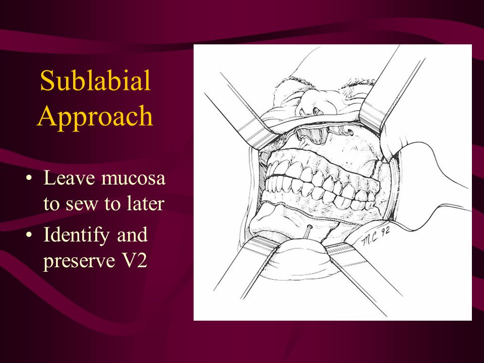 Sublabial Approach Leave mucosa to sew to later Identify and preserve V2