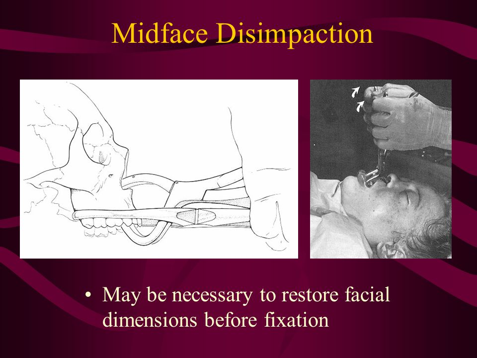 Midface Disimpaction May be necessary to restore facial dimensions before fixation