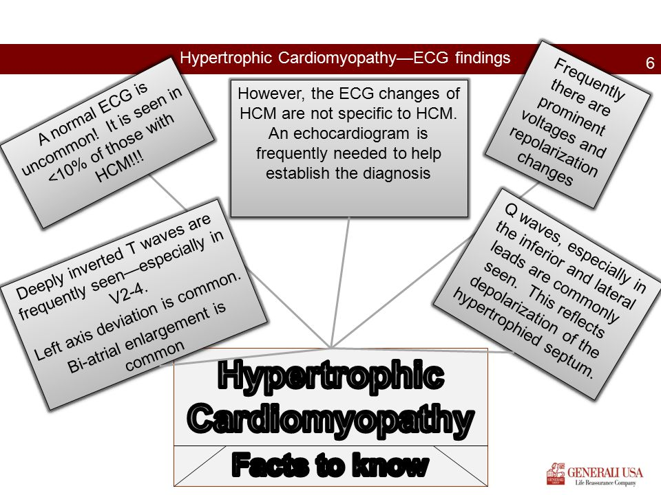 Hypertrophic Cardiomyopathy—ECG findings 6 A normal ECG is uncommon! It is seen in <10% of those with HCM!!! Frequently there are prominent voltages a