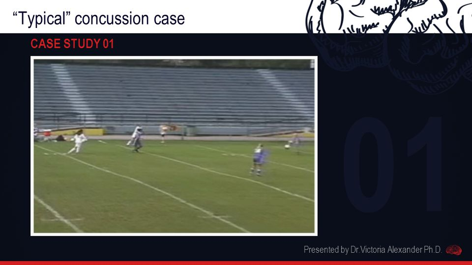 Typical concussion case CASE STUDY 01 Presented by Dr.Victoria Alexander Ph.D. 01